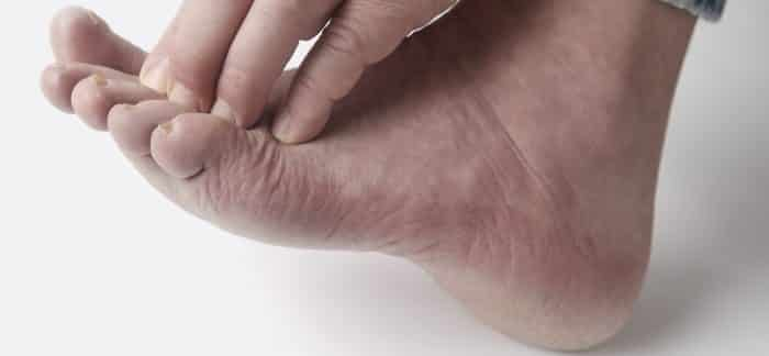Nagelpilz und Fußpilz