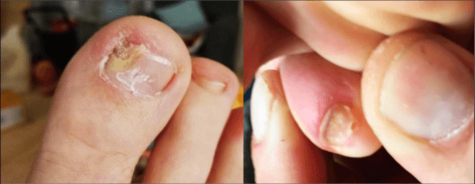 Bestes Mittel gegen Nagelpilz