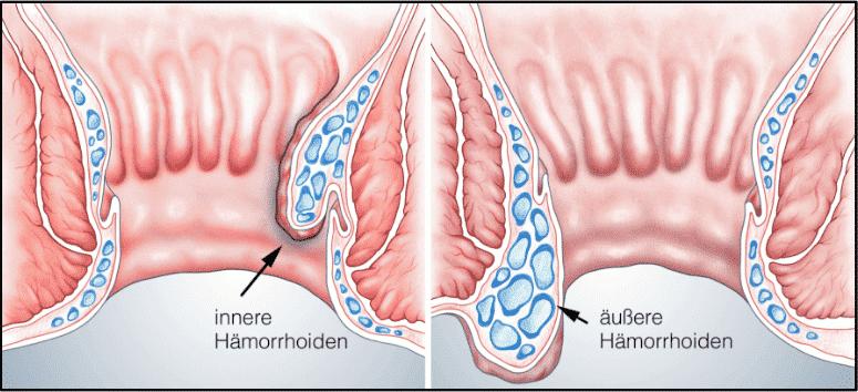 Innere und außere Hämorrhoiden