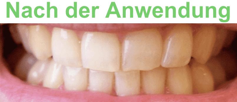 Vor der Denta Seal Anwendung
