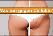 Cellulite Titelbild