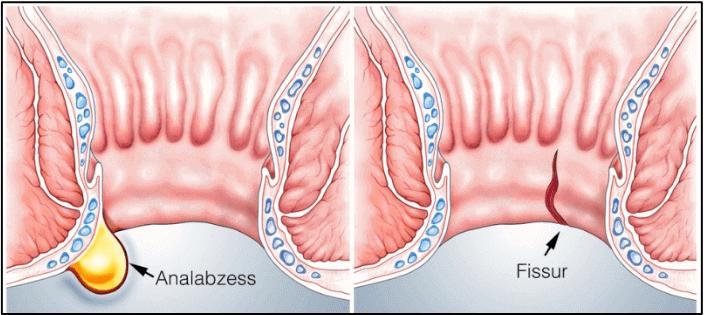 Warnung ᐅ Blut Im Stuhl Direkt Zum Arzt Oder Abwarten