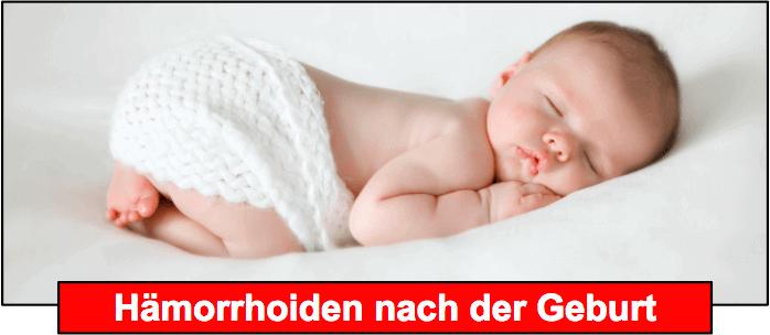 Hämorrhoiden Schwangerschaft nach Geburt
