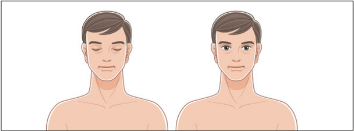 Verminderte Körperbehaarung bei niedrigem Testosteron