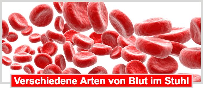 WARNUNG Blut Im Stuhl Direkt Zum Arzt Oder Abwarten