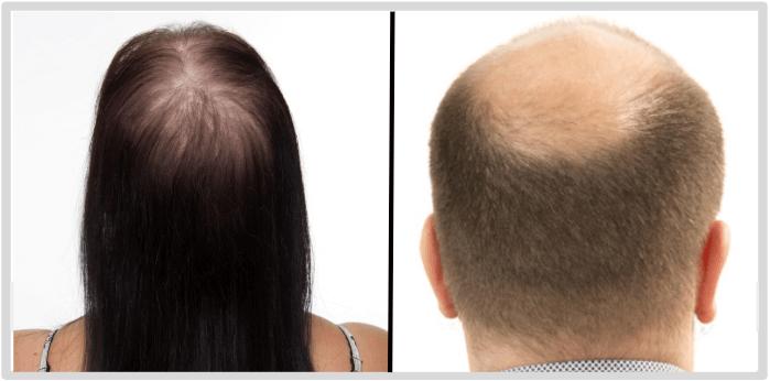 Für wen ist Asami Hair Growth gedacht
