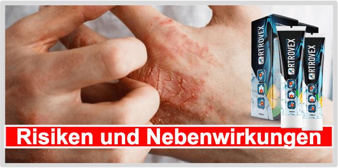 Nebenwirkungen von Artrovex