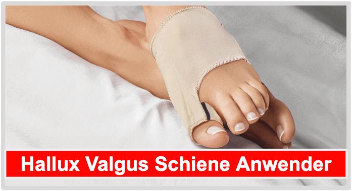 Hallux Valgus Bandage am Fuß zu sehen