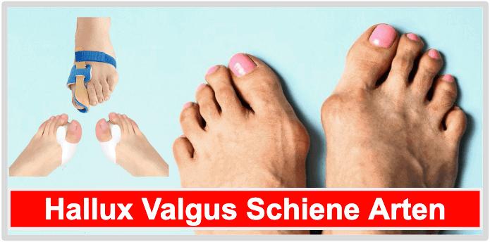 Hallux Valgus Schiene ohne Gelenk mit Gelenk Bandage