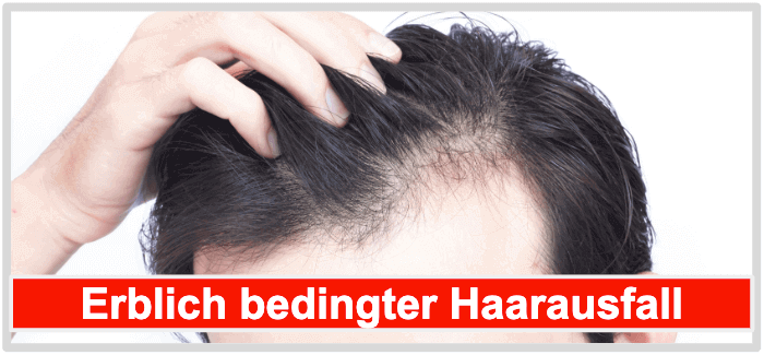Haarwuchsmittel erblich bedingter Haarausfall